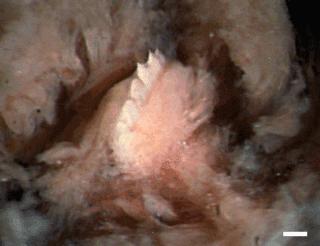 Munden på en igle med tænder