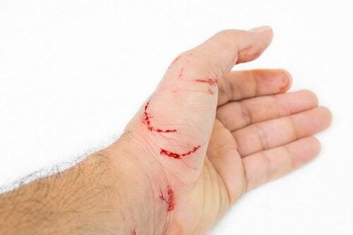 hånd bløder efter at være blevet kradset