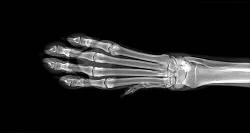 Et røntgenbillede af en hunds ben
