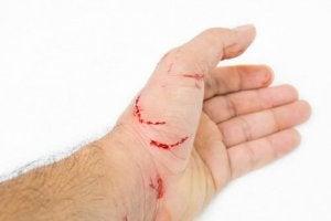 transmission de la maladie des griffes du chat