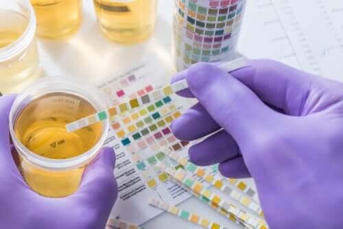 La présence de sang dans l'urine d'un chien requiert une analyse d'urine.