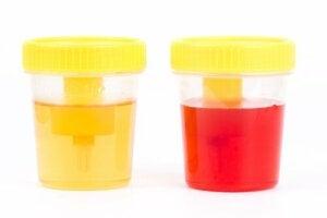 Qu'indique la présence de sang dans l'urine du chien ?