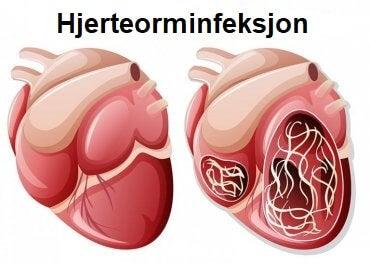 Hjerteorm