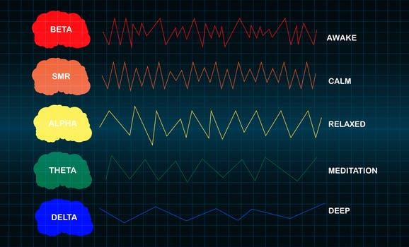Et bilde av elektroencefalografi