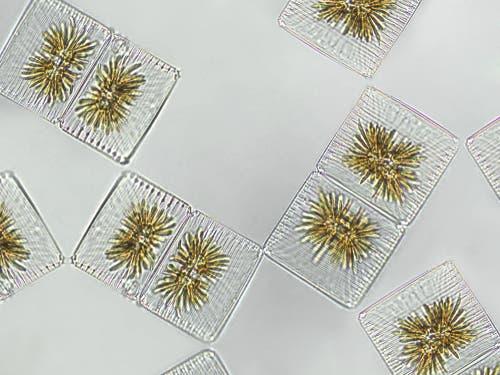 Planteplankton sett i et mikroskop