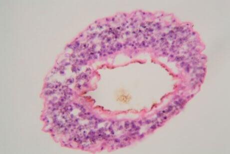 Obraz mikroskopowy pasożyta
