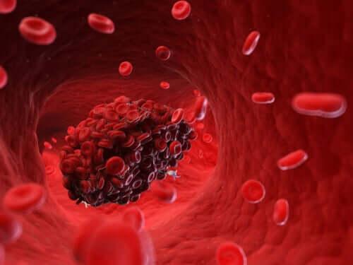 Zakrzepy krwi - czy są one zagrożeniem dla psa?