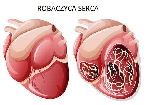 Robaczyca serca