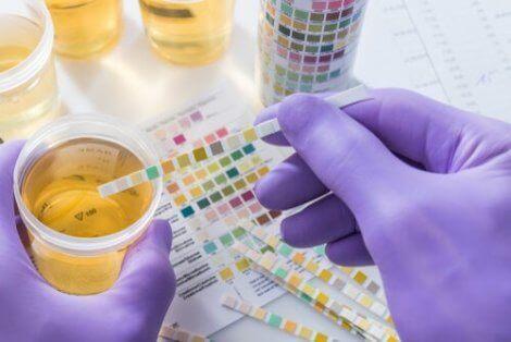 Test av urin