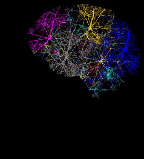 Neuroner i den mänskliga hjärnan.