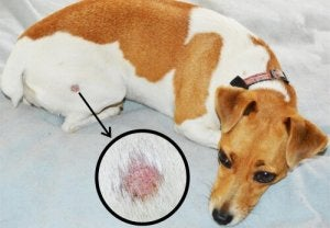 A skin lesion caused by ringworm.