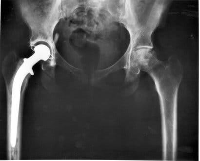 An x-ray of a dislocated hip in dogs.