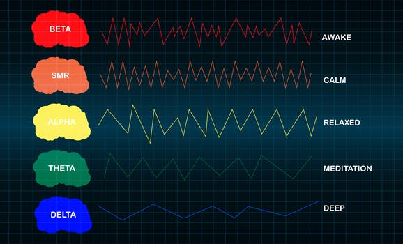 An image of electroencephalography.