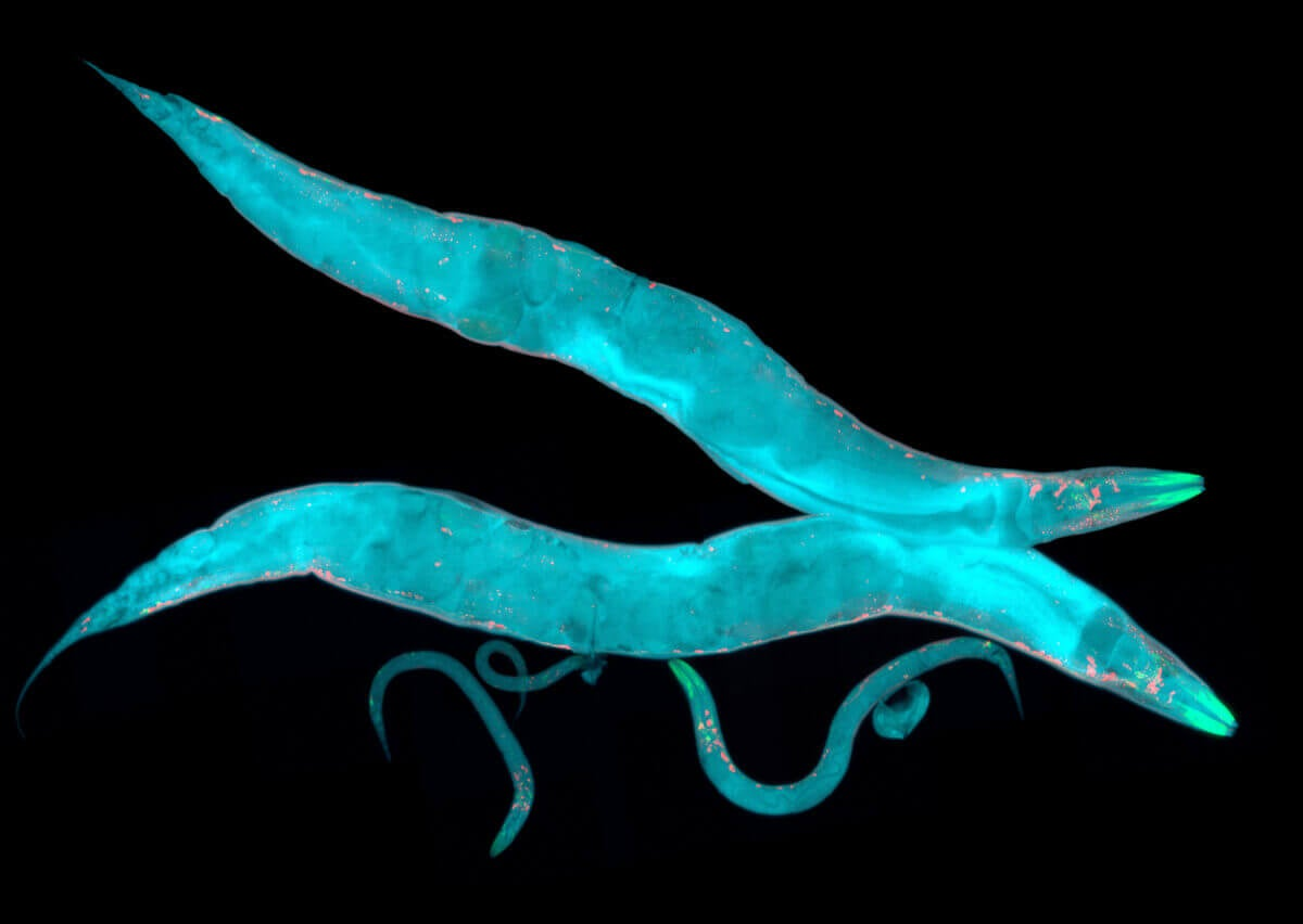 Parasitic worms under a microscope.