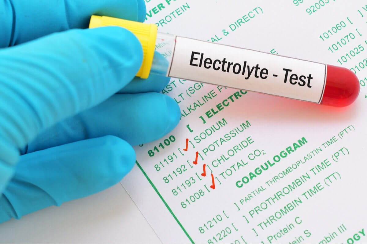 """A hand holding a test tube that reads """"Electrolyte test""""."""